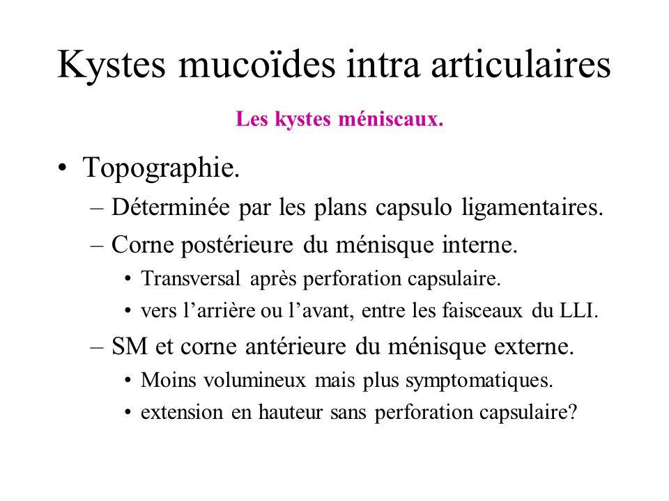 Kystes mucoïdes intra articulaires Les kystes méniscaux. Topographie. –Déterminée par les plans capsulo ligamentaires. –Corne postérieure du ménisque
