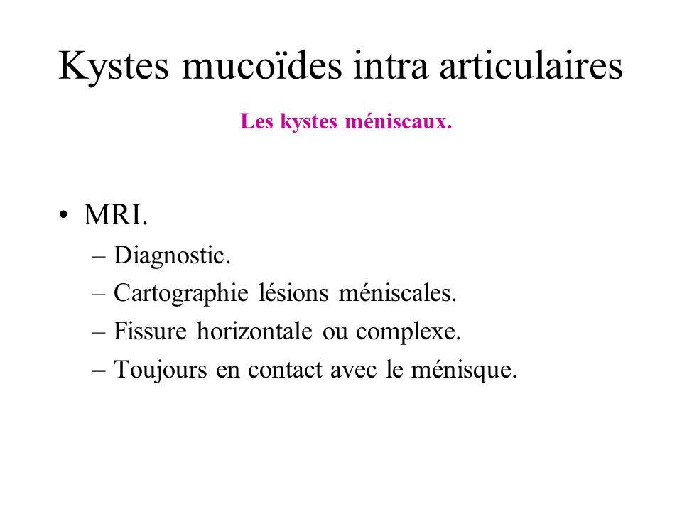 Kystes mucoïdes intra articulaires Les kystes méniscaux. MRI. –Diagnostic. –Cartographie lésions méniscales. –Fissure horizontale ou complexe. –Toujou