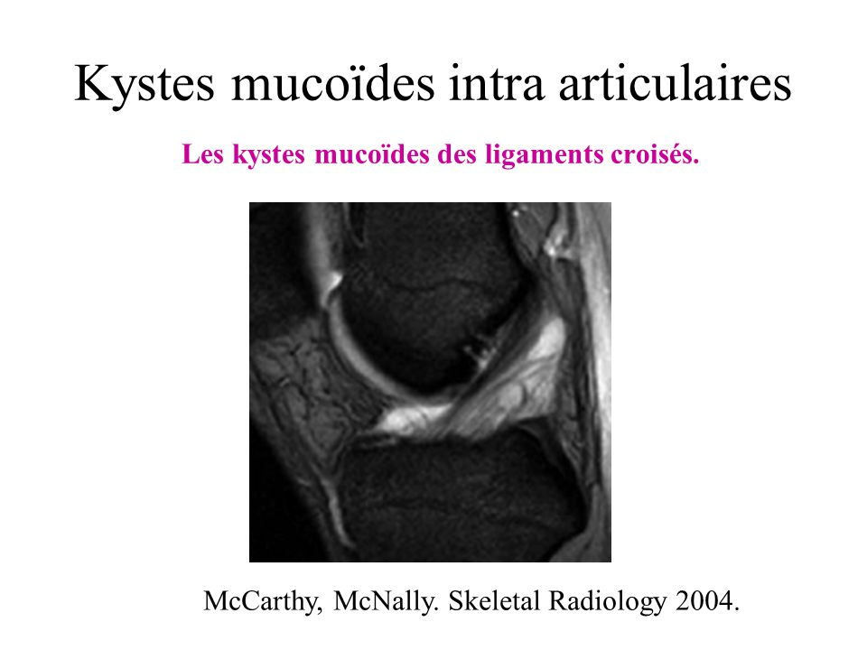 McCarthy, McNally. Skeletal Radiology 2004.