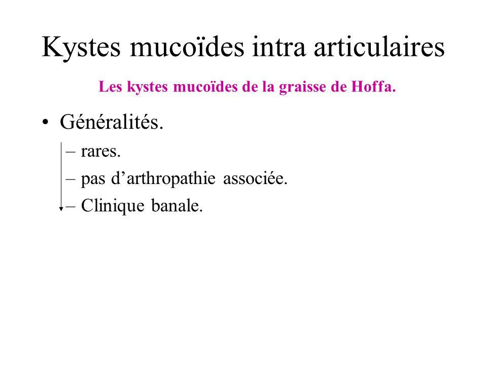 Kystes mucoïdes intra articulaires Les kystes mucoïdes de la graisse de Hoffa. Généralités. –rares. –pas darthropathie associée. –Clinique banale.