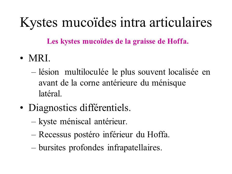 Kystes mucoïdes intra articulaires Les kystes mucoïdes de la graisse de Hoffa. MRI. –lésion multiloculée le plus souvent localisée en avant de la corn