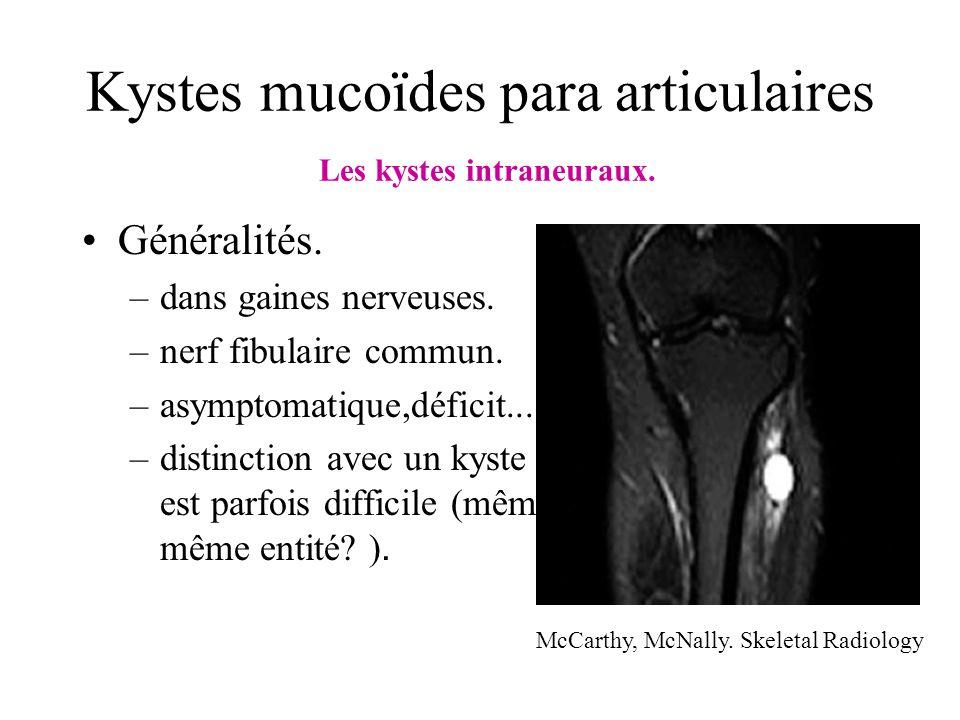 Kystes mucoïdes para articulaires Les kystes intraneuraux. Généralités. –dans gaines nerveuses. –nerf fibulaire commun. –asymptomatique,déficit... –di