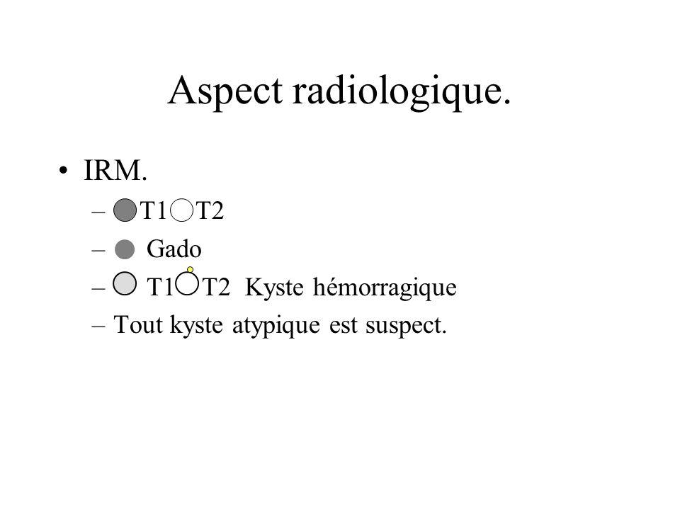 IRM. – T1 T2 – Gado – T1 T2 Kyste hémorragique –Tout kyste atypique est suspect. Aspect radiologique.