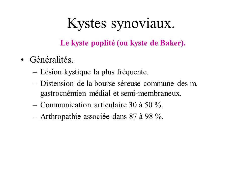 Kystes synoviaux. Le kyste poplité (ou kyste de Baker). Généralités. –Lésion kystique la plus fréquente. –Distension de la bourse séreuse commune des