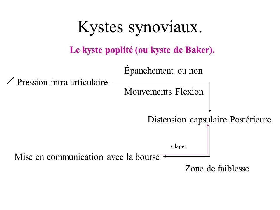 Kystes synoviaux. Le kyste poplité (ou kyste de Baker). Pression intra articulaire Épanchement ou non Distension capsulaire Postérieure Mise en commun