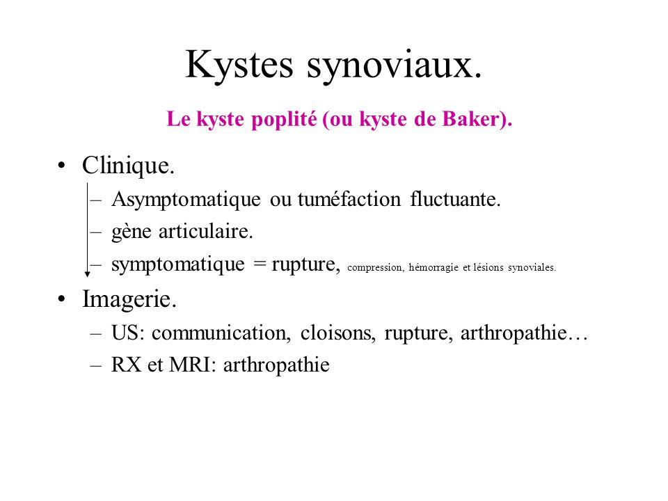 Kystes synoviaux. Le kyste poplité (ou kyste de Baker). Clinique. –Asymptomatique ou tuméfaction fluctuante. –gène articulaire. –symptomatique = ruptu