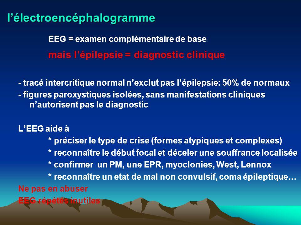 lélectroencéphalogramme EEG = examen complémentaire de base mais lépilepsie = diagnostic clinique - tracé intercritique normal nexclut pas lépilepsie: