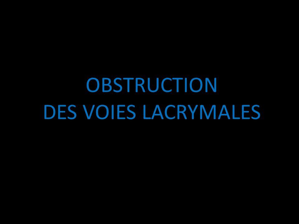 OBSTRUCTION DES VOIES LACRYMALES