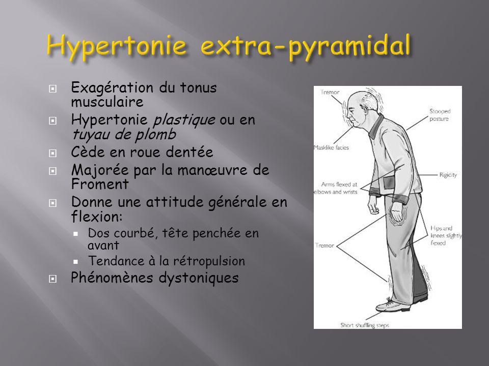 Exagération du tonus musculaire Hypertonie plastique ou en tuyau de plomb Cède en roue dentée Majorée par la manœuvre de Froment Donne une attitude gé