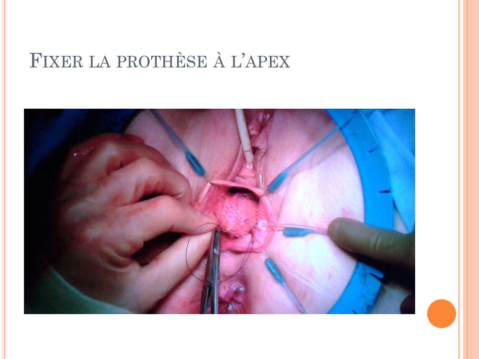 F IXER LA PROTHÈSE À L APEX