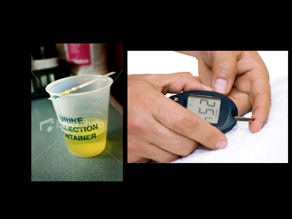 Granules d insuline exocytose Molécules d insuline Vers les organes cibles 1) Hyperglycémie Glycémie > 1 g/L Cellule β