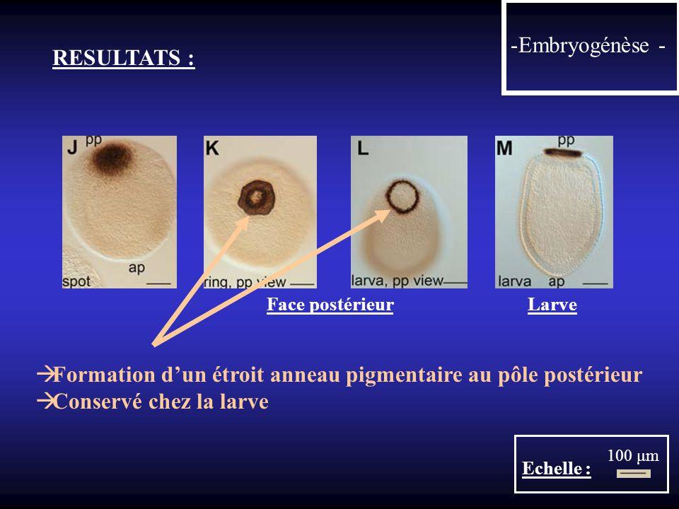 -Embryogénèse - RESULTATS : Face postérieur Larve Echelle : 100 μm Formation dun étroit anneau pigmentaire au pôle postérieur Conservé chez la larve