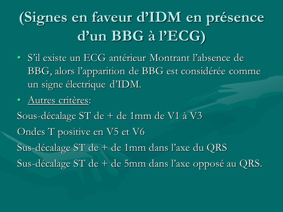 (Signes en faveur dIDM en présence dun BBG à lECG) Sil existe un ECG antérieur Montrant labsence de BBG, alors lapparition de BBG est considérée comme