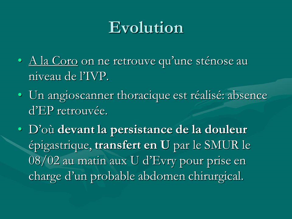 Evolution A la Coro on ne retrouve quune sténose au niveau de lIVP.A la Coro on ne retrouve quune sténose au niveau de lIVP. Un angioscanner thoraciqu