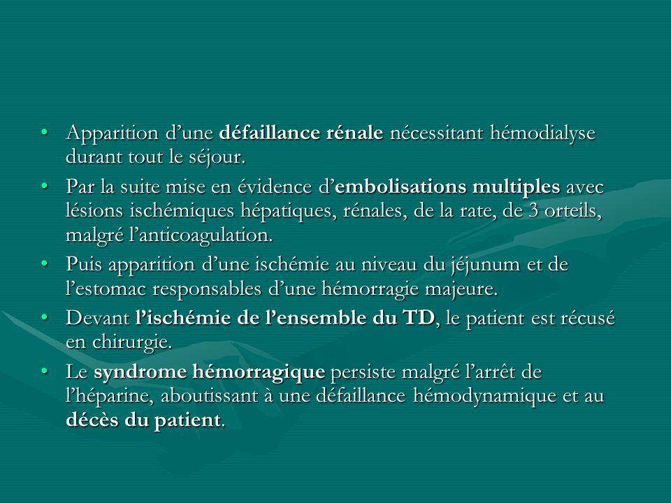 Apparition dune défaillance rénale nécessitant hémodialyse durant tout le séjour.Apparition dune défaillance rénale nécessitant hémodialyse durant tou