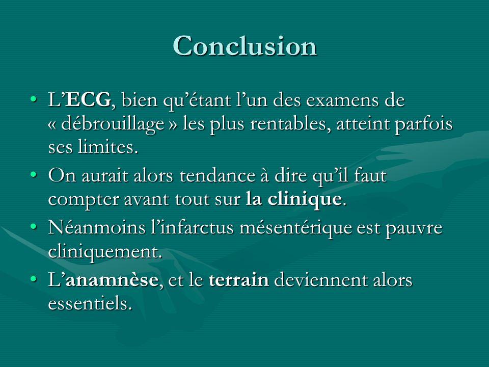 Conclusion LECG, bien quétant lun des examens de « débrouillage » les plus rentables, atteint parfois ses limites.LECG, bien quétant lun des examens d