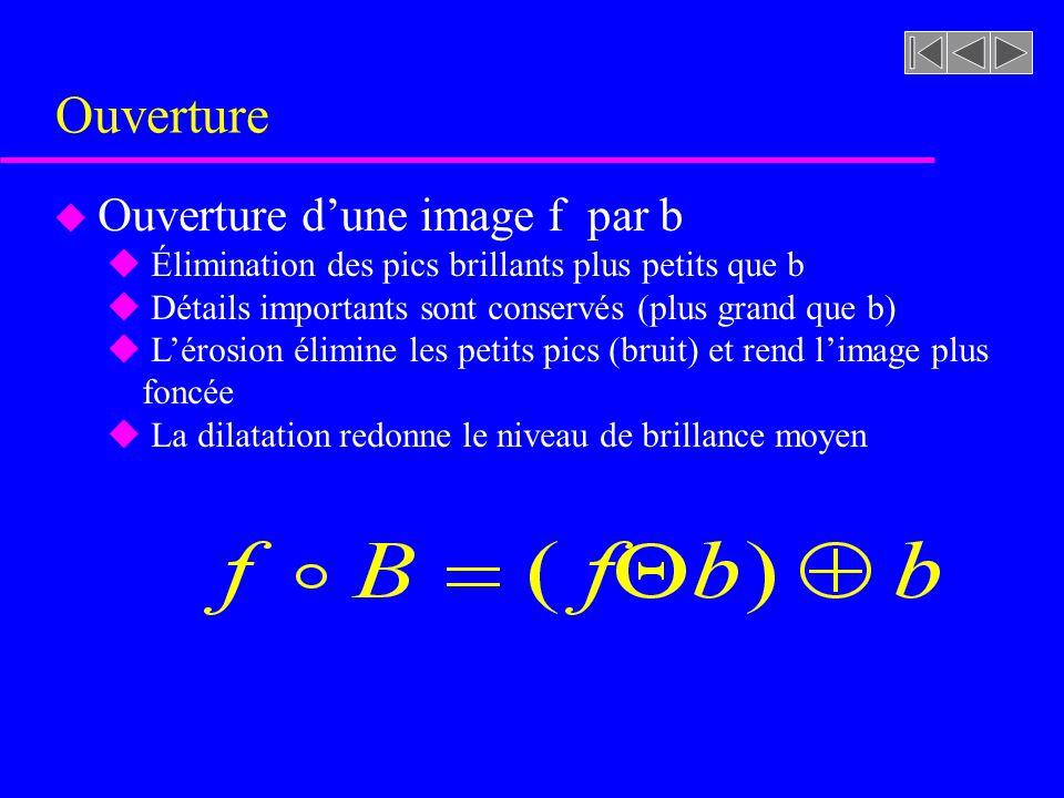 Équation de la surface dune sphère