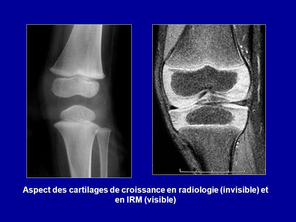 Aspect des cartilages de croissance en radiologie (invisible) et en IRM (visible)