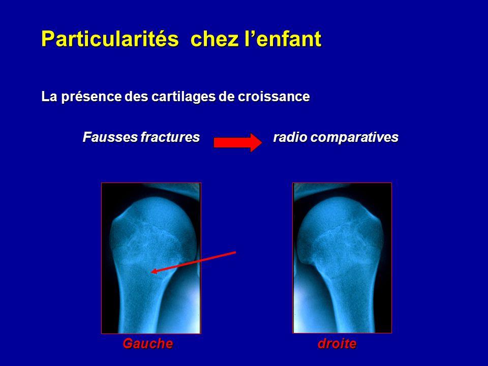 Particularités chez lenfant La présence des cartilages de croissance La présence des cartilages de croissance Fausses fractures radio comparatives Gau