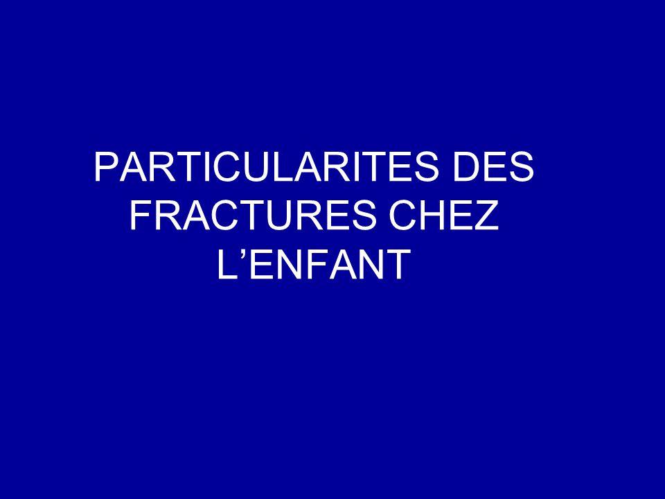 PARTICULARITES DES FRACTURES CHEZ LENFANT