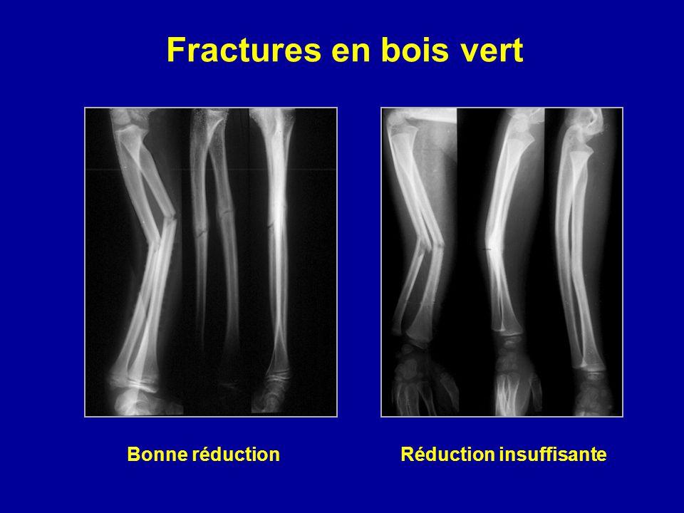 Fractures en bois vert Bonne réductionRéduction insuffisante