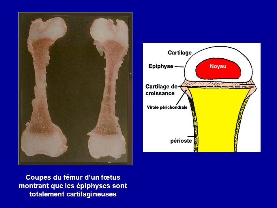 Coupes du fémur dun fœtus montrant que les épiphyses sont totalement cartilagineuses