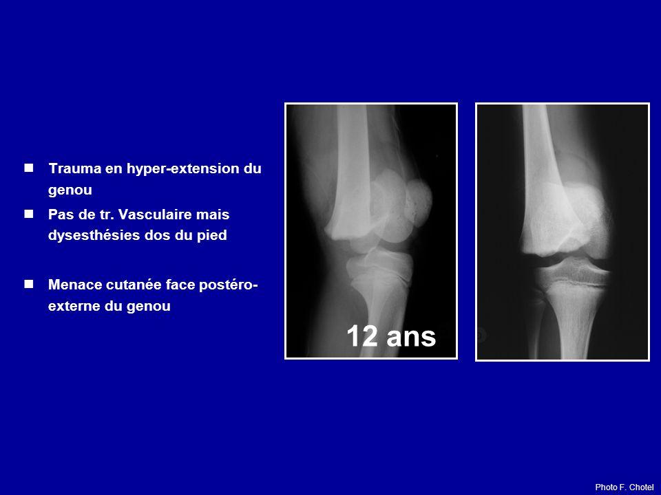 Trauma en hyper-extension du genou Pas de tr. Vasculaire mais dysesthésies dos du pied Menace cutanée face postéro- externe du genou 12 ans Photo F. C