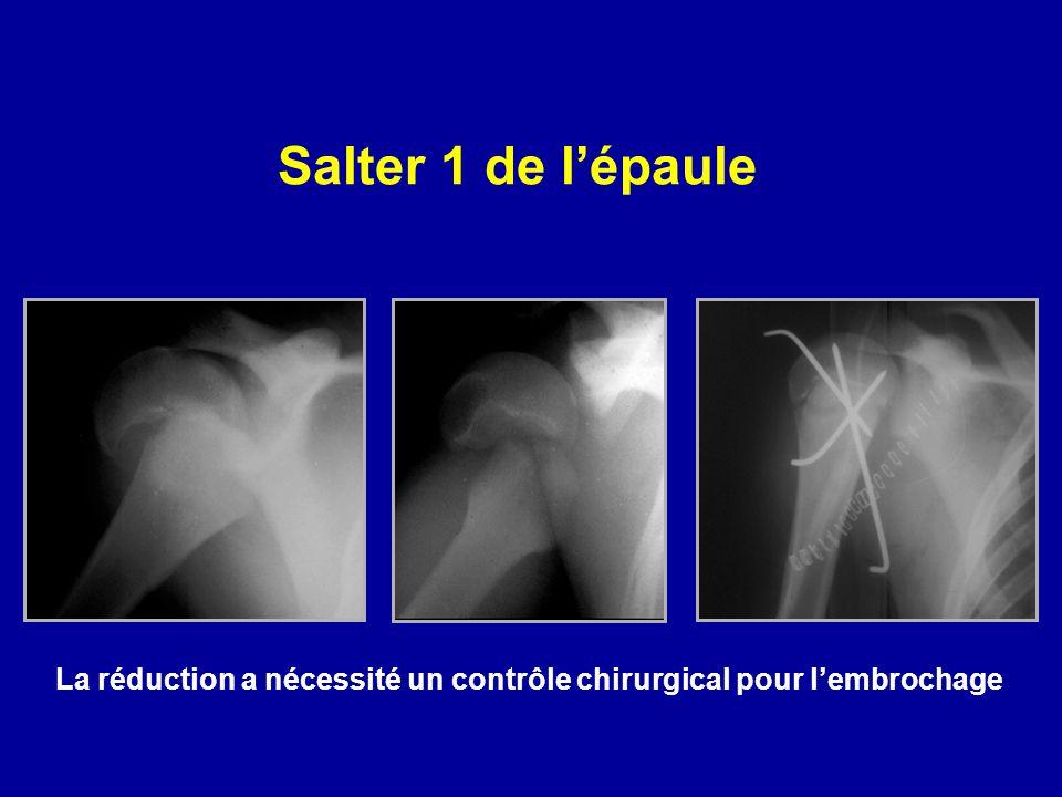 Salter 1 de lépaule La réduction a nécessité un contrôle chirurgical pour lembrochage