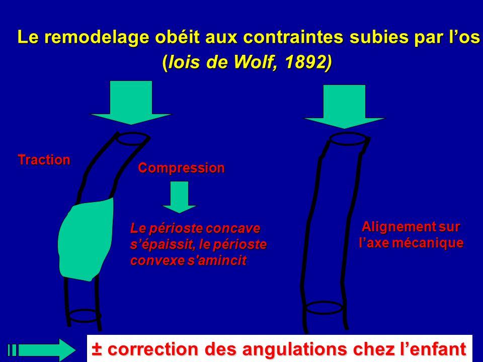 Le remodelage obéit aux contraintes subies par los (lois de Wolf, 1892) Traction Compression ± correction des angulations chez lenfant Le périoste con