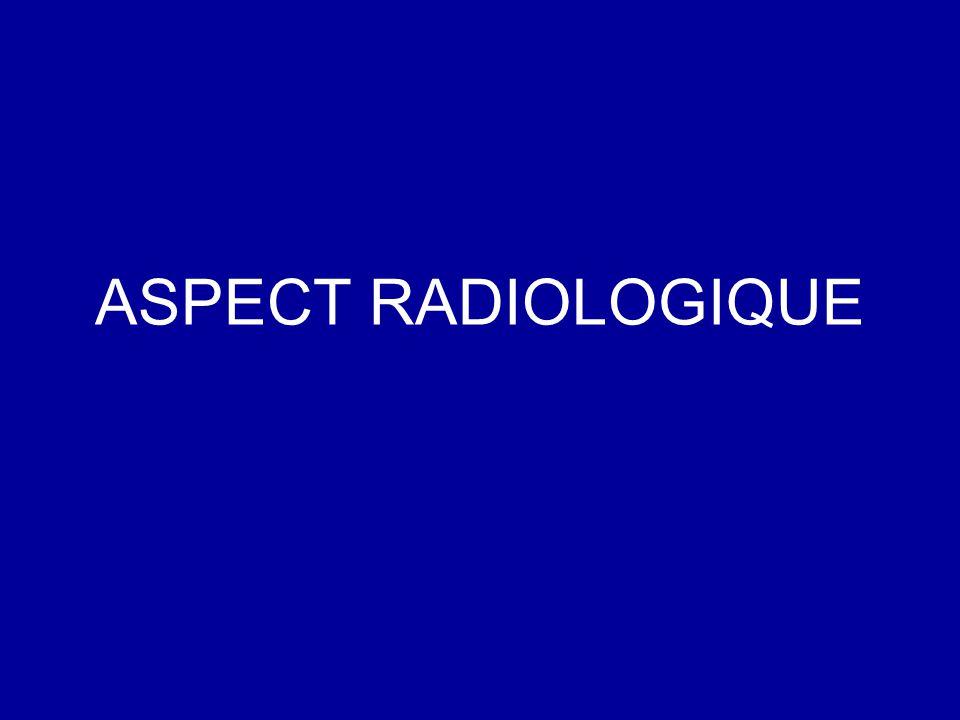 ASPECT RADIOLOGIQUE