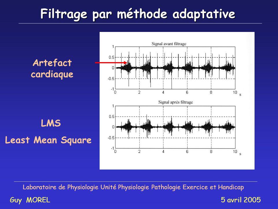 Analyse des paramètres physiologiques Laboratoire de Physiologie Unité Physiologie Pathologie Exercice et Handicap Guy MOREL 5 avril 2005 Indice de fa