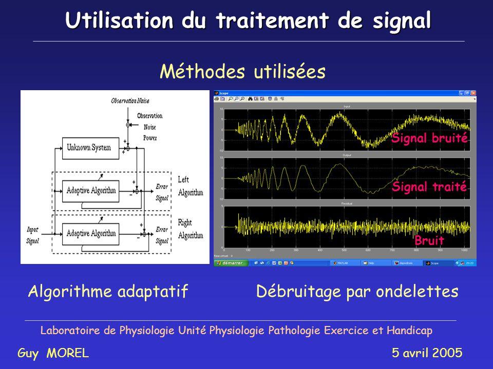 Filtrage par méthode adaptative Laboratoire de Physiologie Unité Physiologie Pathologie Exercice et Handicap Guy MOREL 5 avril 2005 Artefact cardiaque