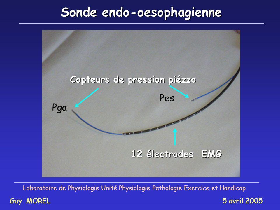Laboratoire de Physiologie Unité Physiologie Pathologie Exercice et Handicap Guy MOREL 5 avril 2005 4-Électromyographie du diaphragme 1 - Pression Buc
