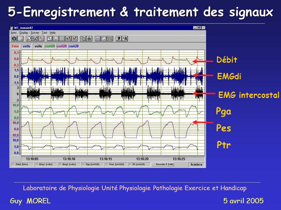Laboratoire de Physiologie Unité Physiologie Pathologie Exercice et Handicap Guy MOREL 5 avril 2005 EMGdi Débit Pga Pes Ptr EMG intercostal Activité de l EMGdi et Parasternal, débit, pressions 5-Enregistrement & traitement des signaux