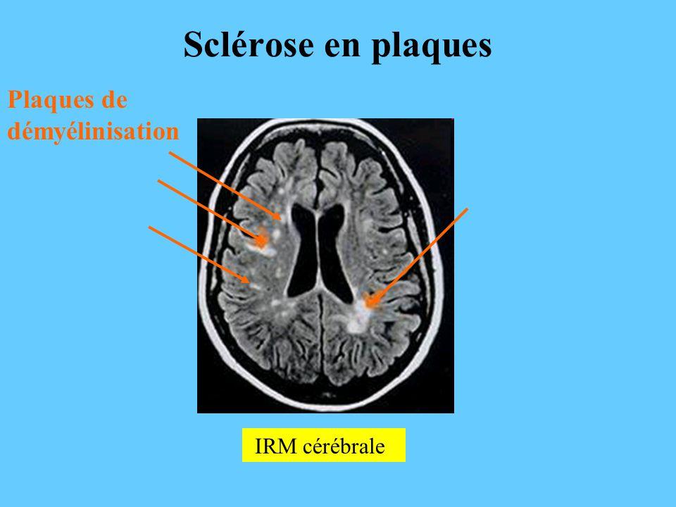 IRM cérébrale Sclérose en plaques Plaques de démyélinisation