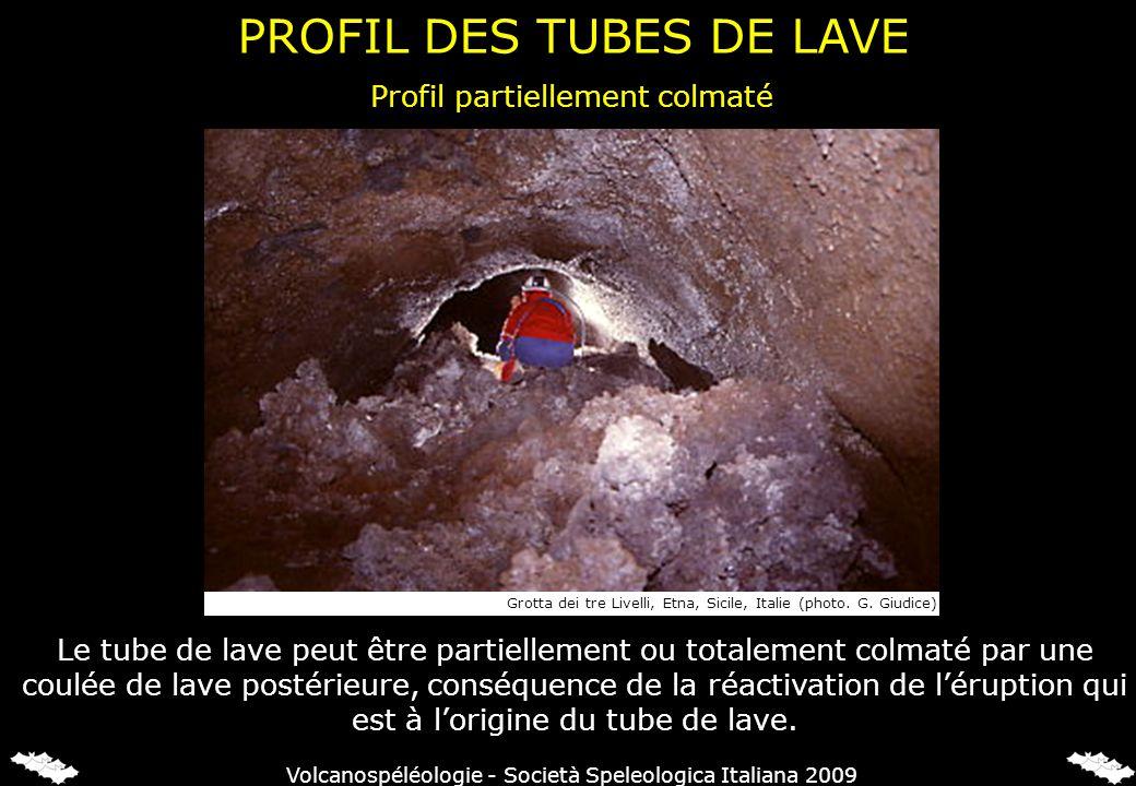 Profil partiellement colmaté Le tube de lave peut être partiellement ou totalement colmaté par une coulée de lave postérieure, conséquence de la réactivation de léruption qui est à lorigine du tube de lave.