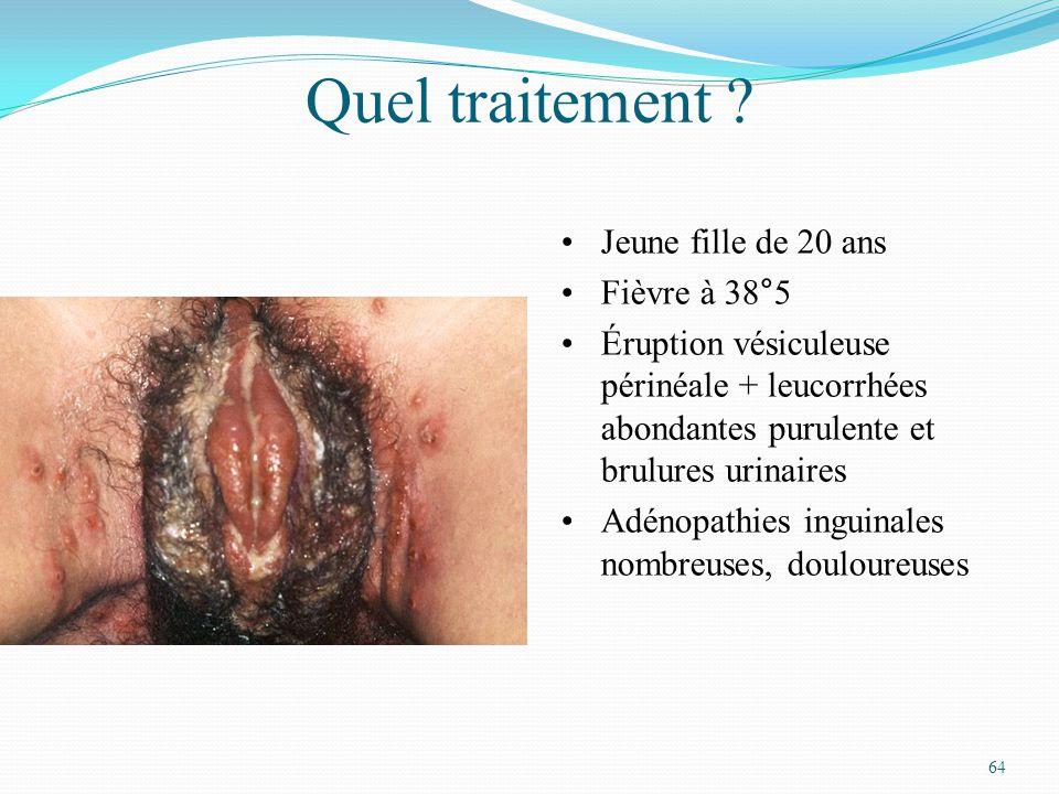 64 Quel traitement ? Jeune fille de 20 ans Fièvre à 38°5 Éruption vésiculeuse périnéale + leucorrhées abondantes purulente et brulures urinaires Adéno