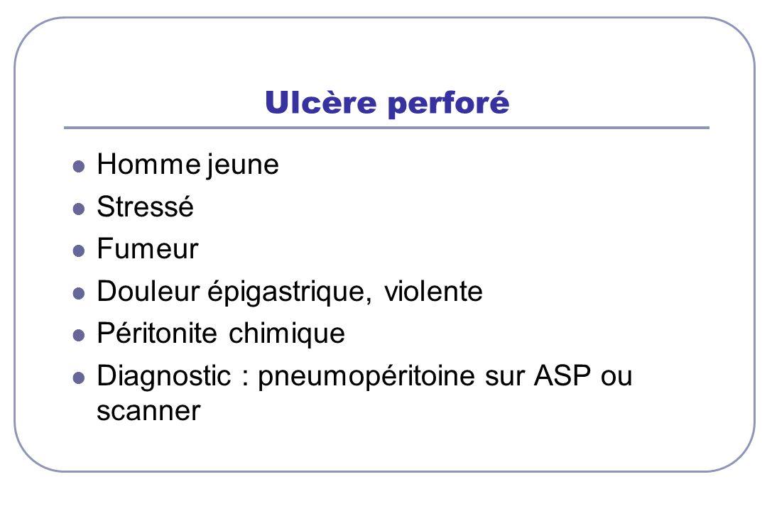 Ulcère perforé Homme jeune Stressé Fumeur Douleur épigastrique, violente Péritonite chimique Diagnostic : pneumopéritoine sur ASP ou scanner