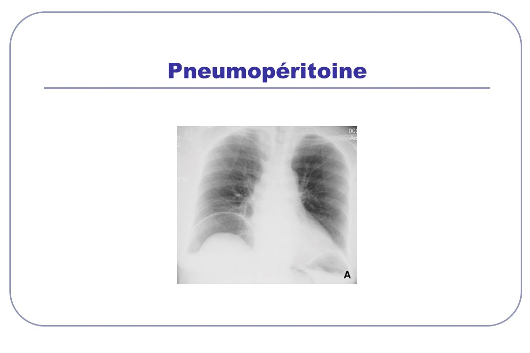 Pneumopéritoine