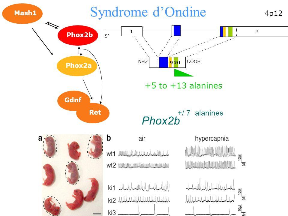 Phox2b +/ 7alanines Ret Gdnf Mash1 Phox2b Phox2a 20 4p12 1 3 5 3 9 NH2COOH +5 to +13 alanines Syndrome dOndine
