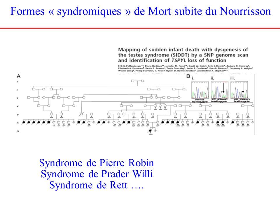 Formes « syndromiques » de Mort subite du Nourrisson Syndrome de Pierre Robin Syndrome de Prader Willi Syndrome de Rett ….