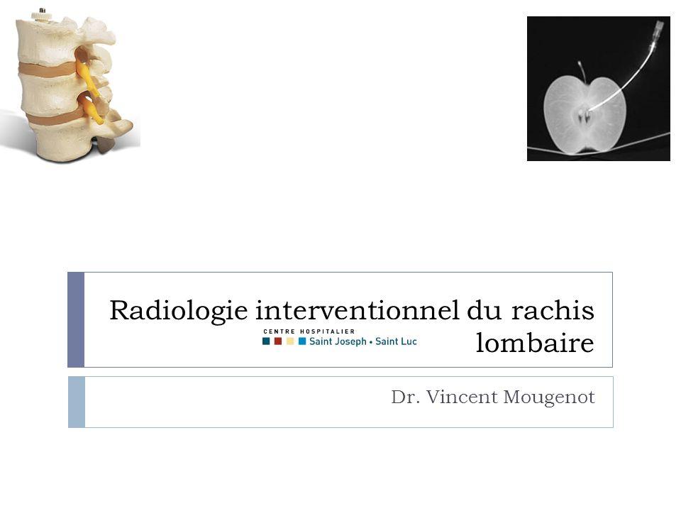 Radiologie interventionnel du rachis lombaire Dr. Vincent Mougenot