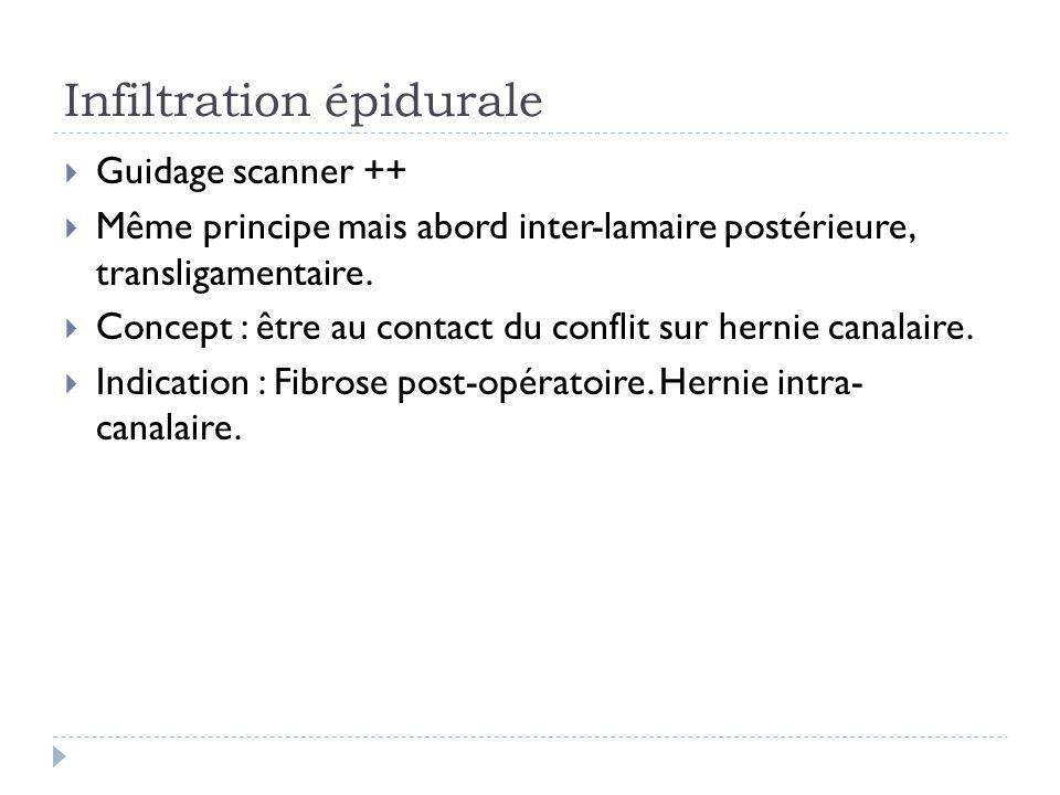 Infiltration épidurale Guidage scanner ++ Même principe mais abord inter-lamaire postérieure, transligamentaire. Concept : être au contact du conflit