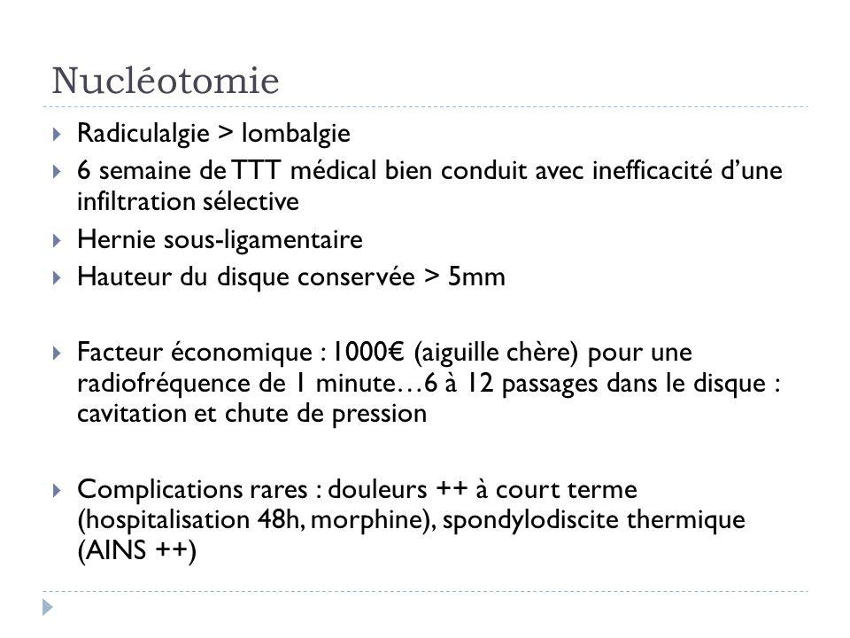 Nucléotomie Radiculalgie > lombalgie 6 semaine de TTT médical bien conduit avec inefficacité dune infiltration sélective Hernie sous-ligamentaire Haut