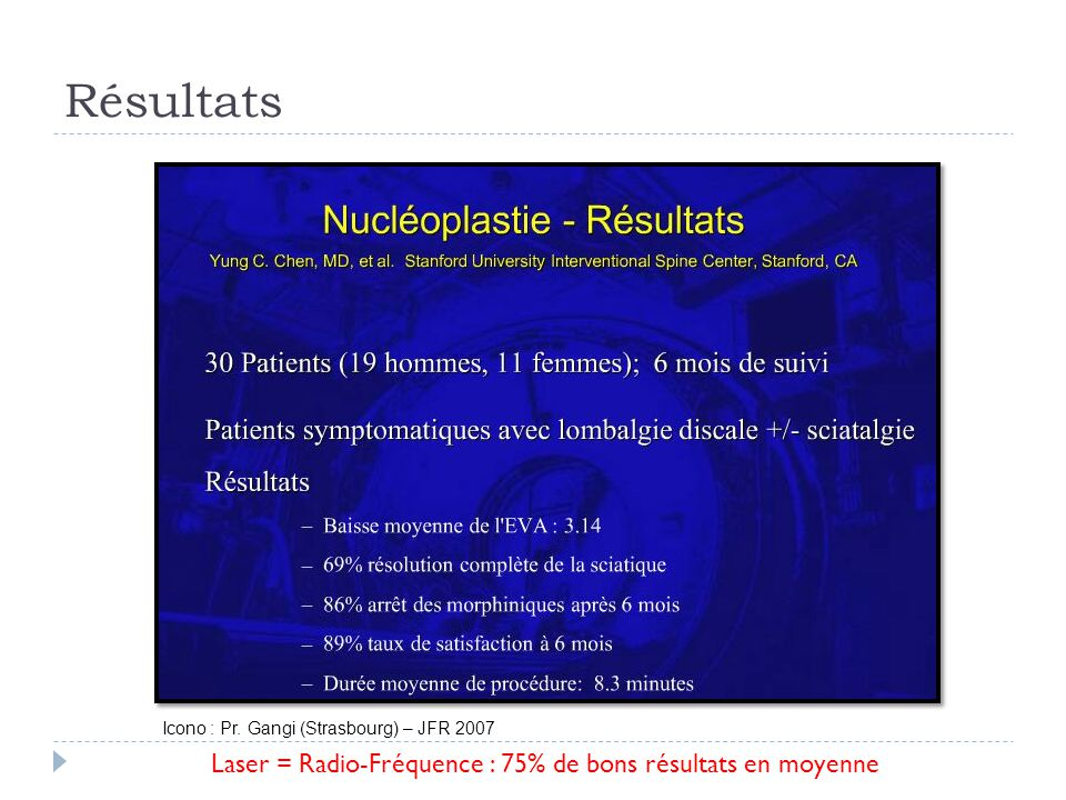 Résultats Laser = Radio-Fréquence : 75% de bons résultats en moyenne Icono : Pr. Gangi (Strasbourg) – JFR 2007