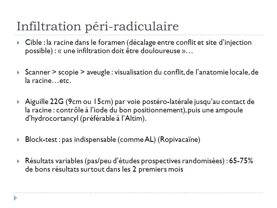 Infiltration péri-radiculaire Cible : la racine dans le foramen (décalage entre conflit et site dinjection possible) : « une infiltration doit être do