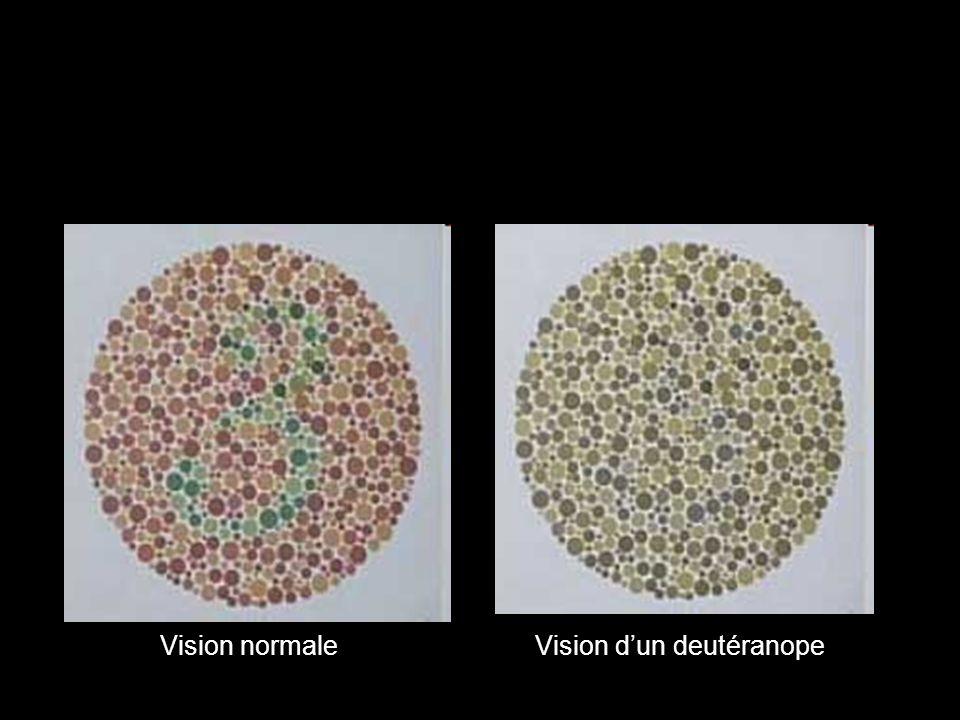 Vision normaleVision dun deutéranope