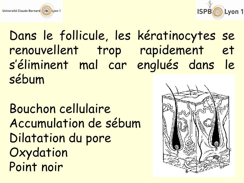 Dans le follicule, les kératinocytes se renouvellent trop rapidement et séliminent mal car englués dans le sébum Bouchon cellulaire Accumulation de sé