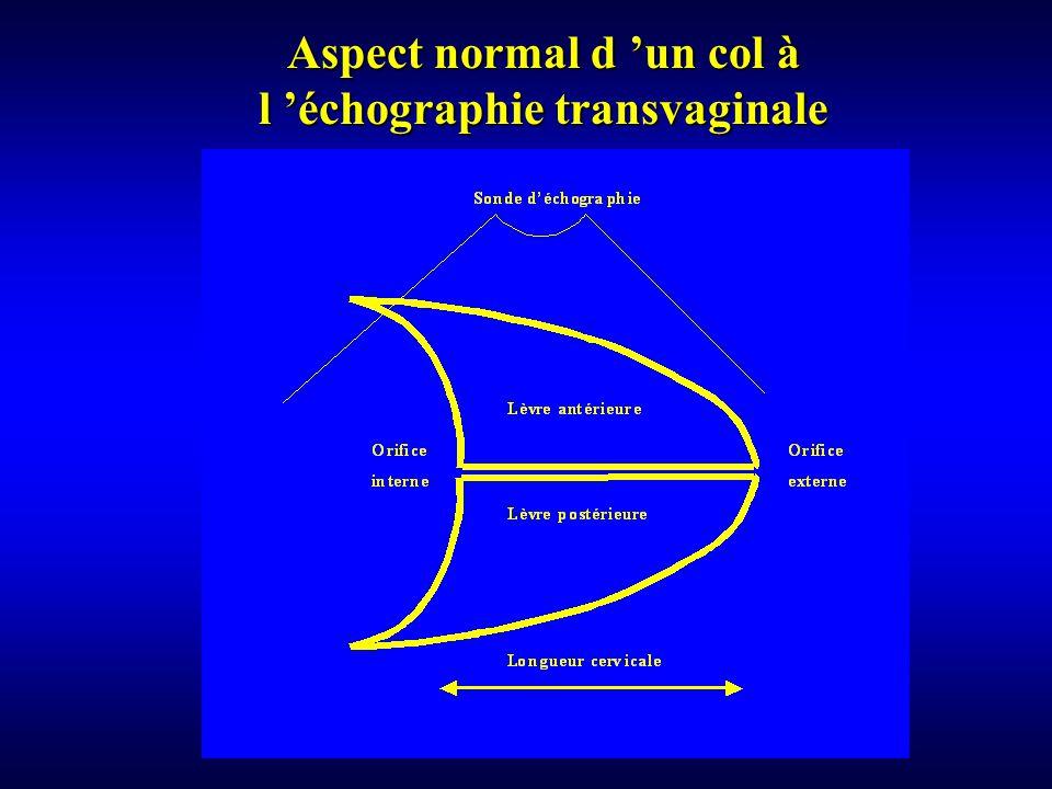 Aspect normal d un col à l échographie transvaginale