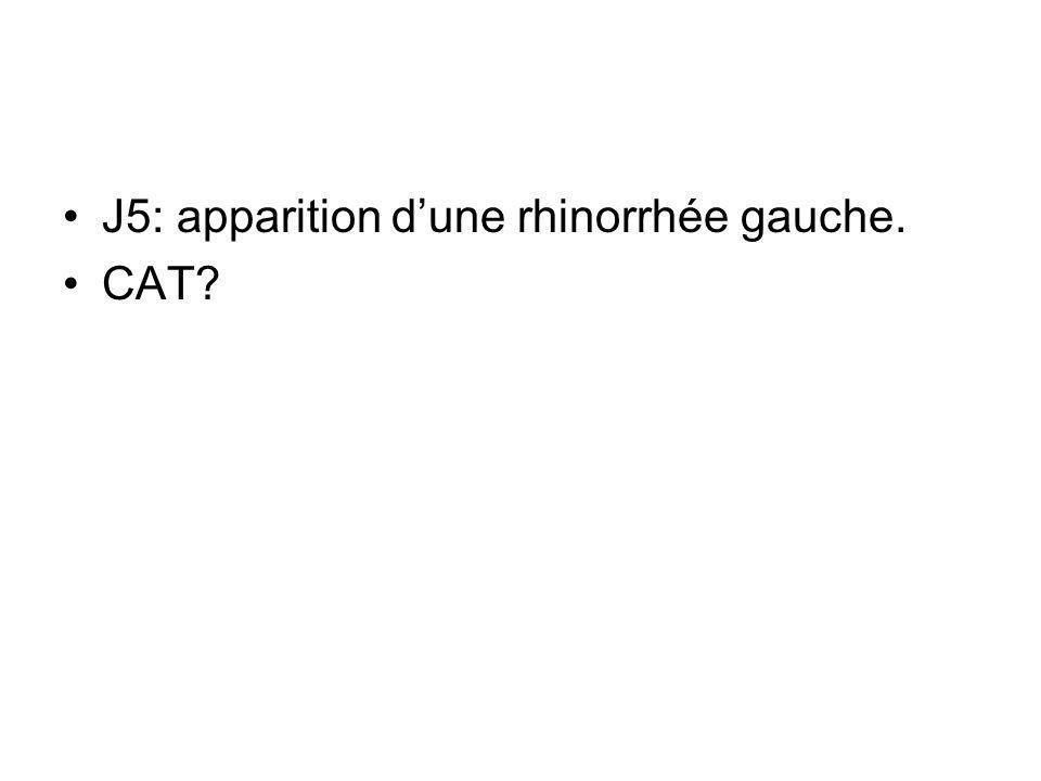 J5: apparition dune rhinorrhée gauche. CAT?